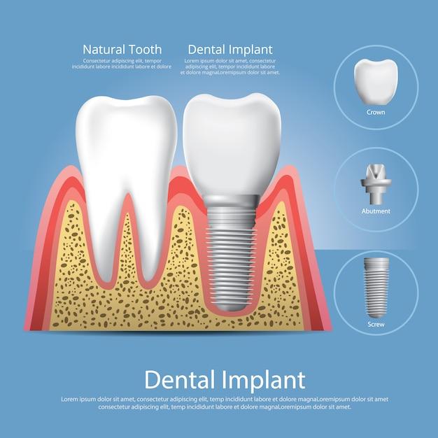 Human teeth and dental implant vector illustration Premium Vector