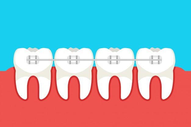 Человеческие зубы с металлическими брекетами. векторная иллюстрация Premium векторы