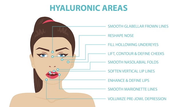 Hyaluronic acid facial injection areas Premium Vector
