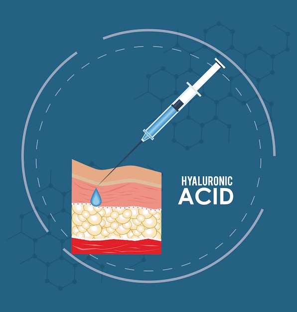 Hyaluronic acid filler injection infographic Premium Vector