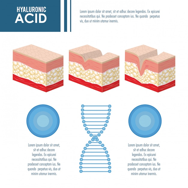 Hyaluronic acid filler injection infographic Premium Vector