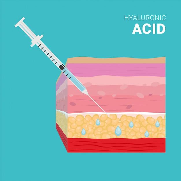 Hyaluronic acid injection, thin syringe Premium Vector