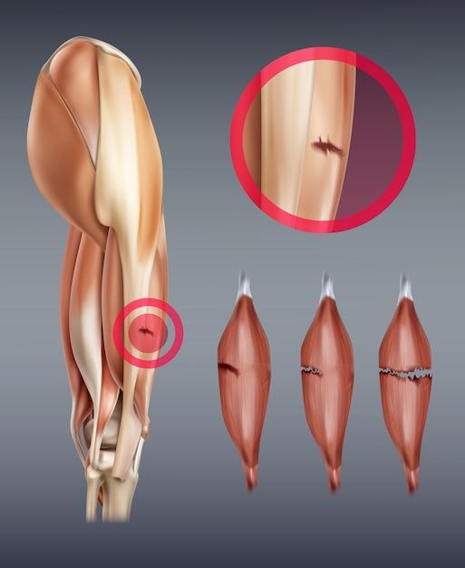 Illustration of leg muscle injury Premium Vector