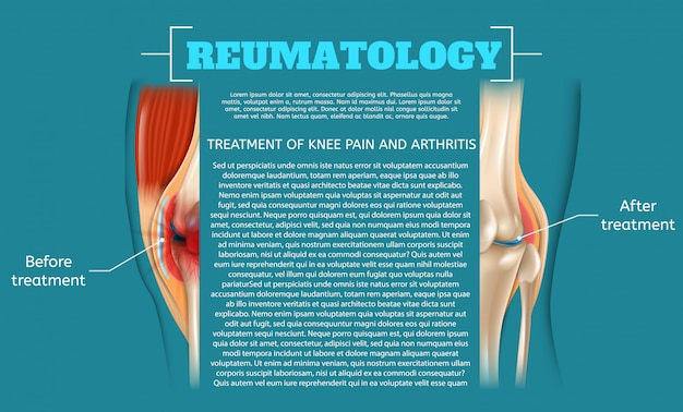 Illustration treatment of knee pain and arthritis Premium Vector
