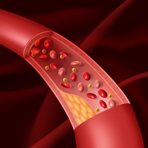 Illustration of vascular atherosclerosis cutaway view of accumulated plaque in an afflicted blood vessel. Premium Vector