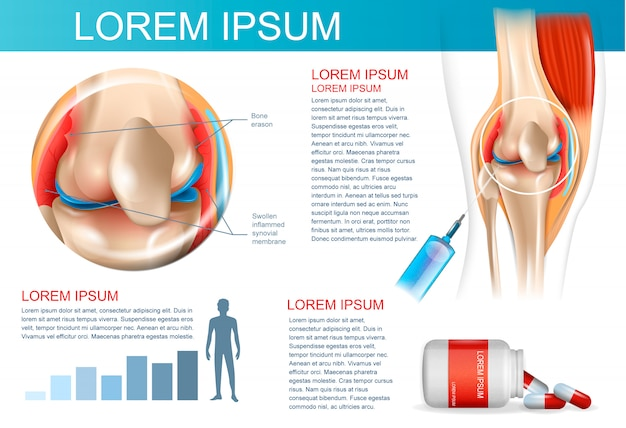 Infographic treatment method rheumatoid arthritis Premium Vector
