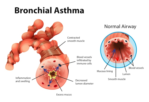 Informative illustration of asthma inflamed bronchial tube Free Vector