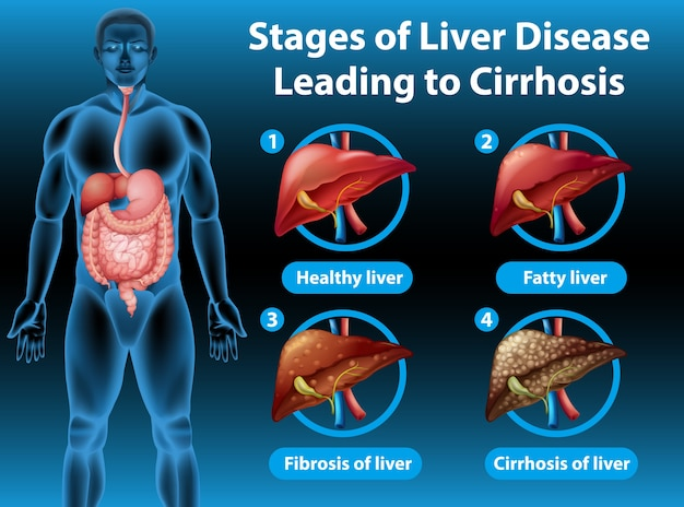 Illustrazione informativa delle fasi della malattia del fegato che porta alla cirrosi Vettore gratuito