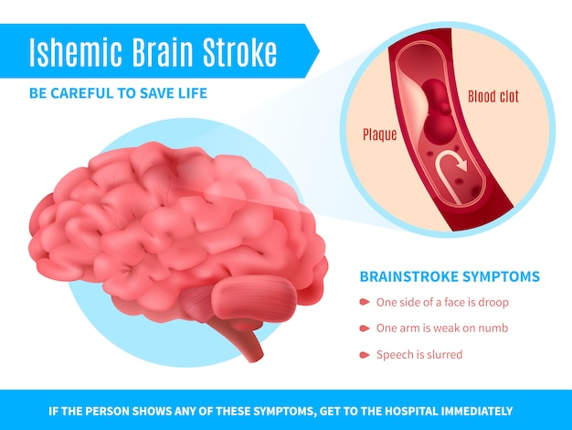 Ischemic brain stroke poster Free Vector