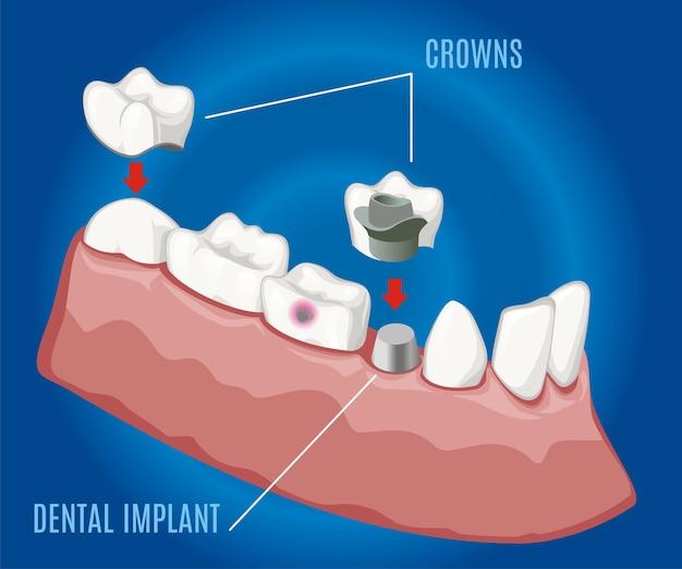 Modello di stomatologia protesica professionale isometrica con impianto dentale e corone su sfondo blu isolato Vettore gratuito