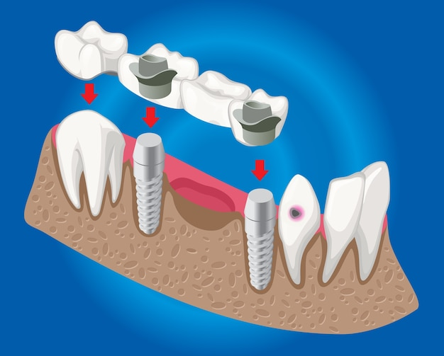 Isometric prosthetic dentistry concept with dental bridge used for missing teeth covering isolated Free Vector