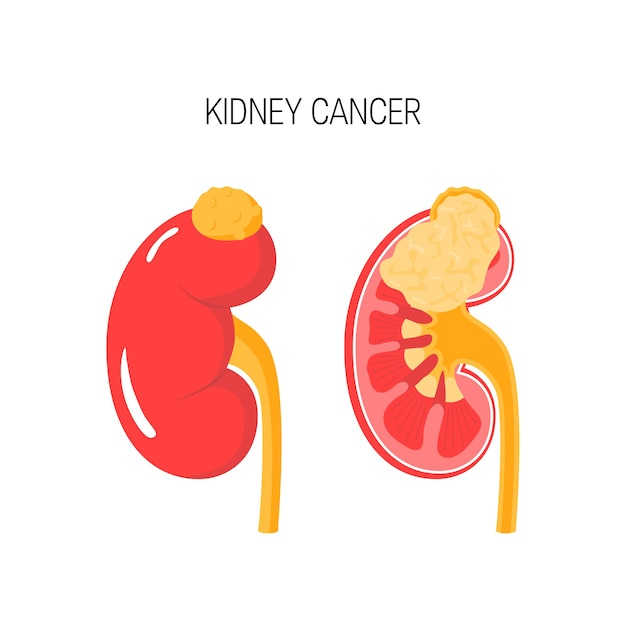 Kidney cancer concept in flat style Premium Vector