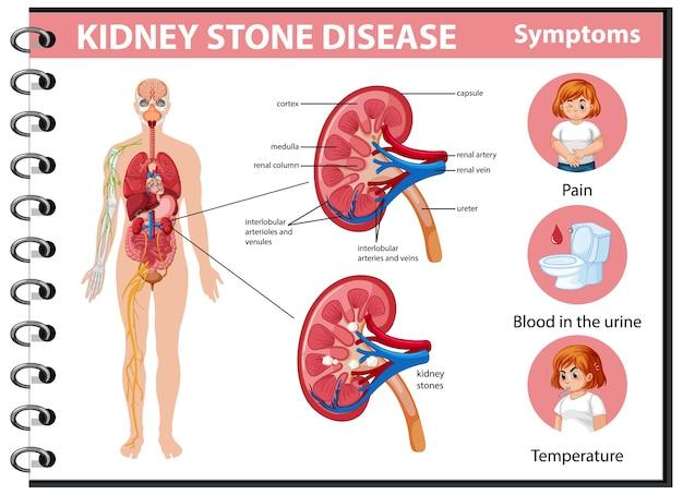 Болезнь почечных камней и симптомы инфографики Бесплатные векторы
