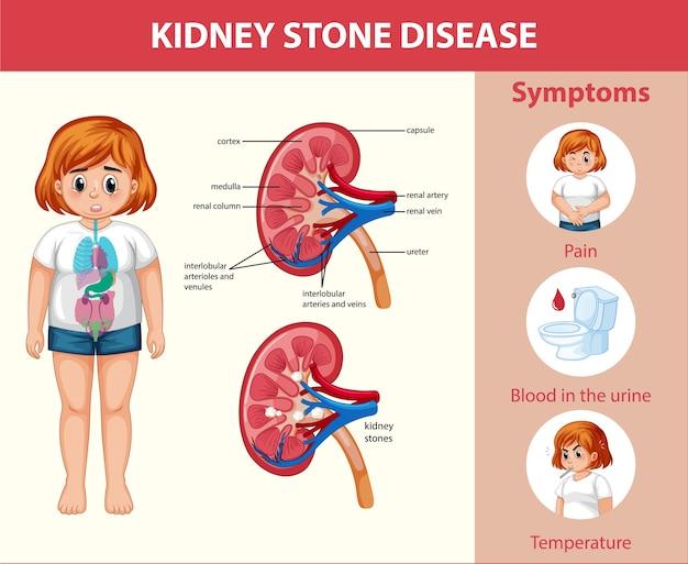 Kidney stones disease cartoon style infographic Free Vector