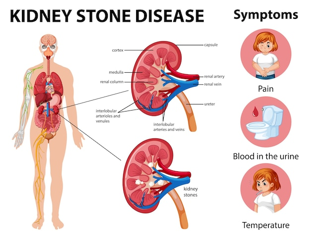 Kidney stones disease and symptoms infographic Free Vector