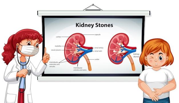 Симптомы камней в почках мультяшном стиле инфографики с мультипликационным персонажем доктора Бесплатные векторы