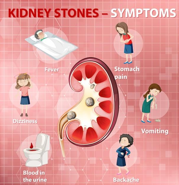 Free Vector Kidney Stones Symptoms Cartoon Style Infographic