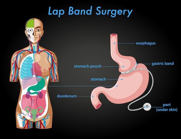 Анатомия хирургии нахлесточной ленты Бесплатные векторы