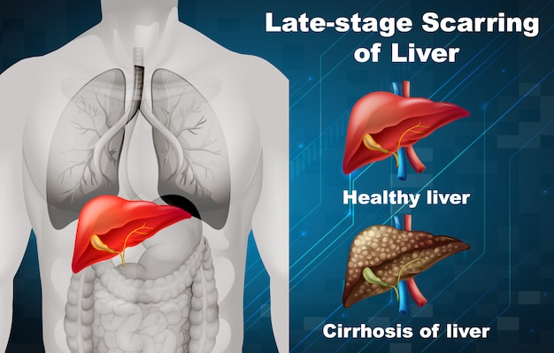 Late-stage scarring of liver Free Vector