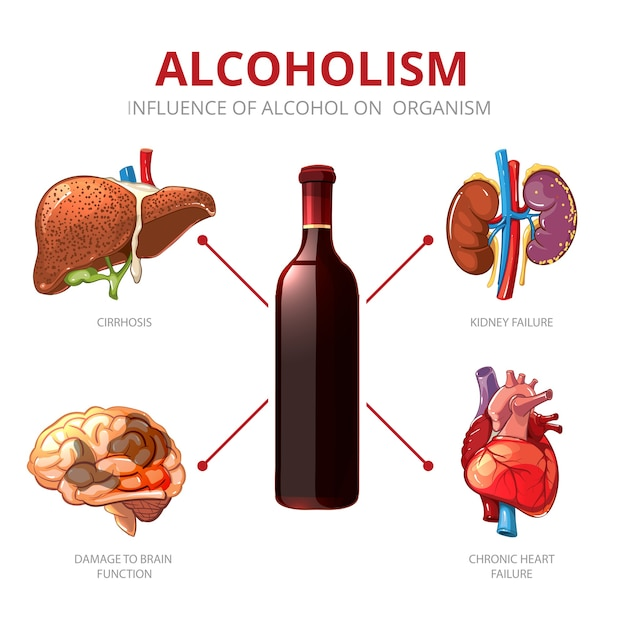 Long-term effects of alcohol. organism function and brain damage, failure kidney illustration. alcoholism vector infographic Free Vector