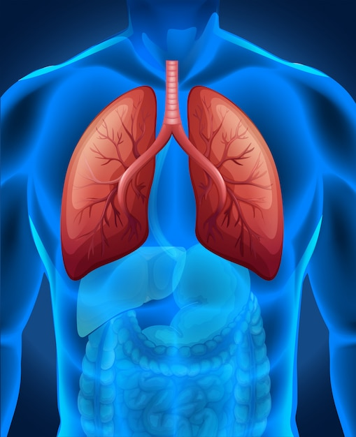 Lung cancer in human Free Vector