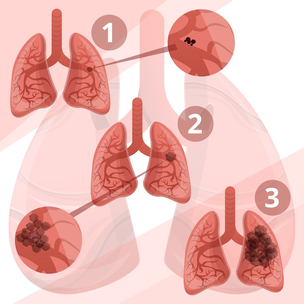Lung system infographic, cartoon style Premium Vector