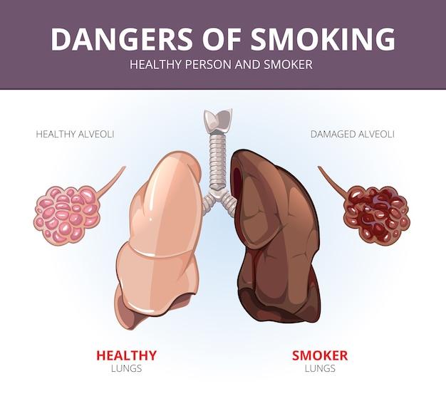 健康な人と喫煙者の肺と肺胞。臓器のイラスト、呼吸器の解剖学、科学と病気。ベクトル医療図 無料ベクター