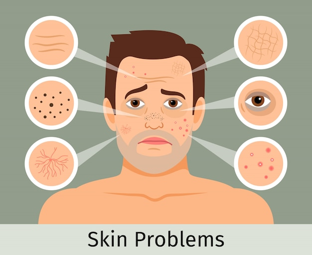 Male facial skin problems vector illustration  acne and dark