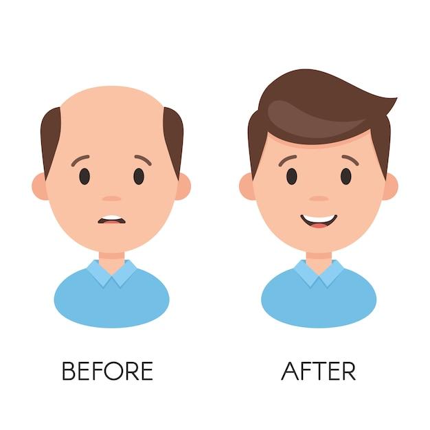 Выпадение волос у мужчин Premium векторы
