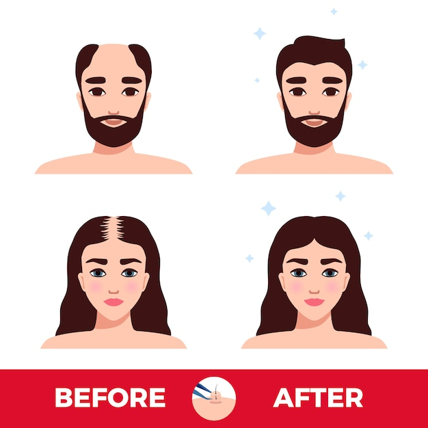 Man and woman before and after hair transplantation on white Free Vector