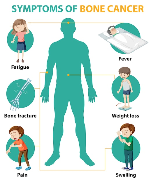 Medical infographic of bone cancer symptoms Free Vector