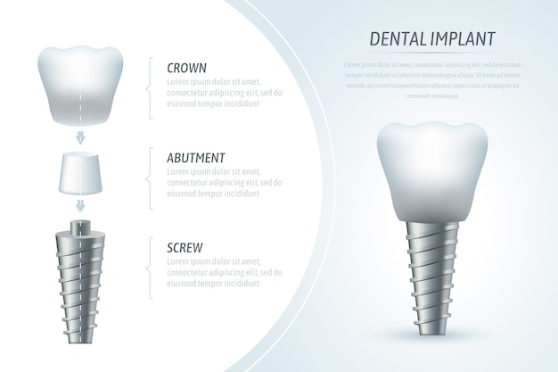 Medical infographic template and dental implant Premium Vector