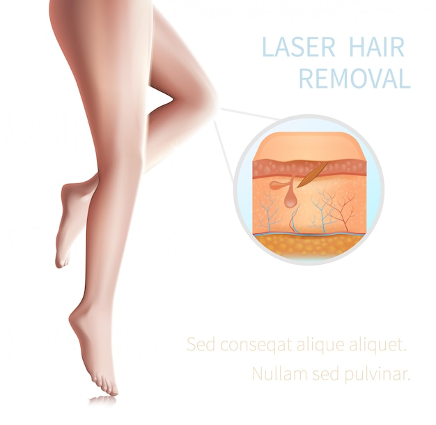Medical infographics laser hair removal procedure. Premium Vector