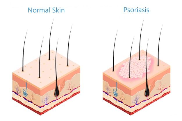 Medicine problem skin psoriasis Premium Vector