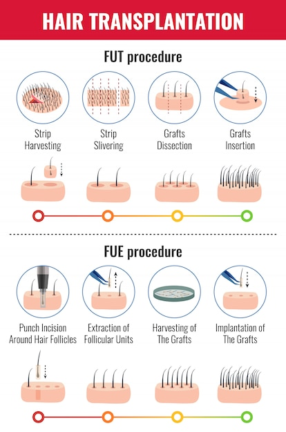 Methods of hair transplantation with stages of procedure infographics on white Free Vector