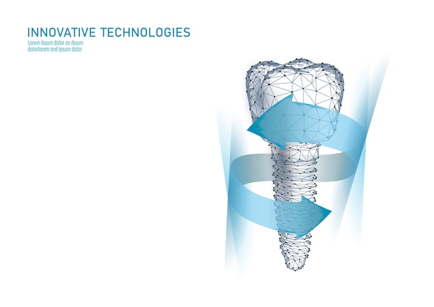 Molar tooth dental implant 3d low poly geometric model. Premium Vector