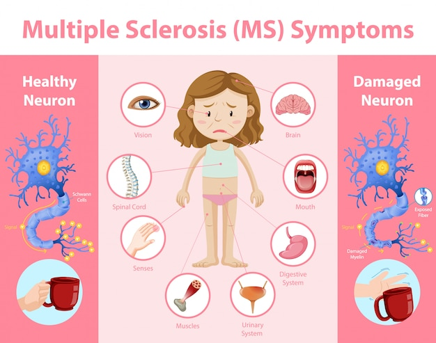 Multiple sclerosis (ms) symptoms information infographic Free Vector