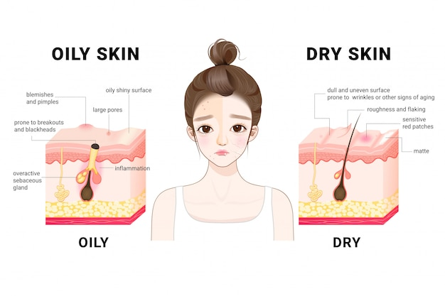 Oily & dry skin. different. human skin types and conditions. a diagrammatic sectional view of the skin. Premium Vector