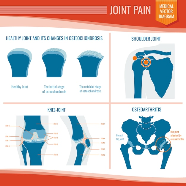 Osteoarthritis and rheumatism joint pain medical vector infographic Premium Vector
