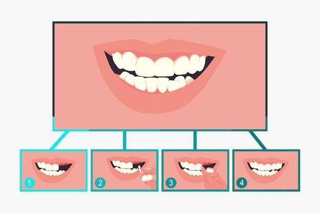 Partial denture dental Premium Vector