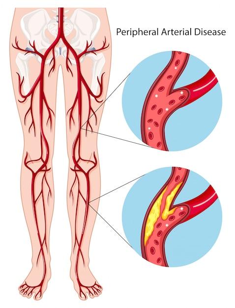 Peripheral arterial disease diagram Premium Vector