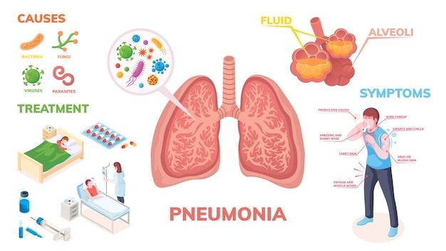 症状に関する肺炎肺疾患のインフォグラフィック Premiumベクター
