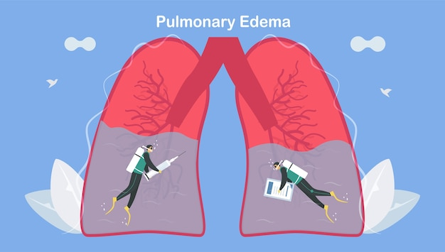 Premium Vector | Pulmonary edema is symptom that lungs fill with fluid.  treatment and diagnostic. body struggles to get enough oxygen until  shortness of breath.