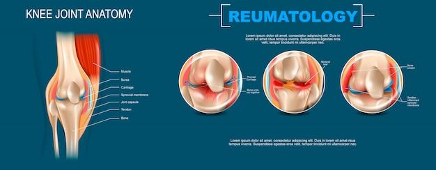 Realistic banner illustration knee joint anatomy Premium Vector
