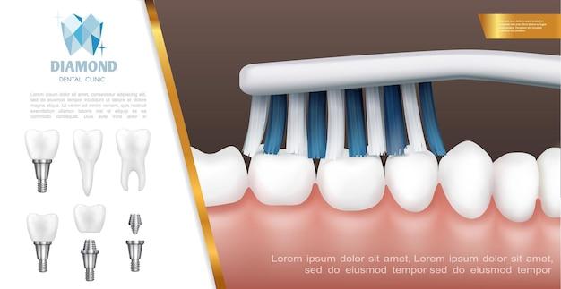 치아 청소 또는 칫솔질 과정 및 치아 임플란트와 현실적인 치과 건강 개념 무료 벡터