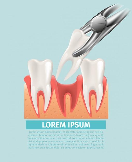 Realistic illustration dental surgery in 3d vector Premium Vector