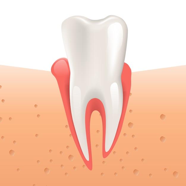 Realistic illustration gingivitis healthy tooth Premium Vector