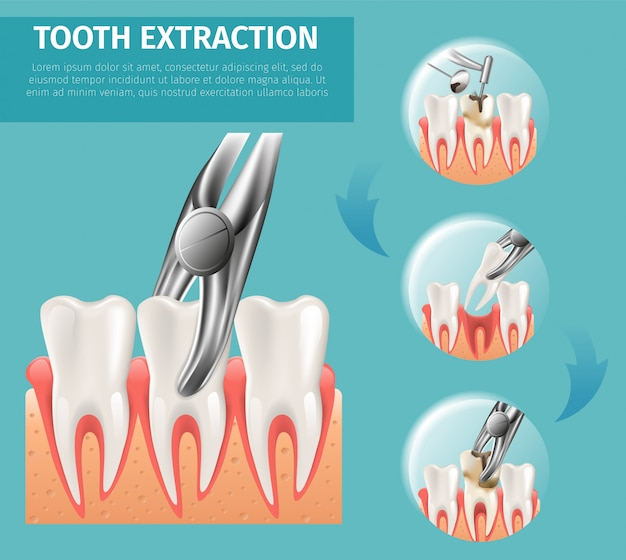 Realistic illustration tooth extraction vector 3d Premium Vector