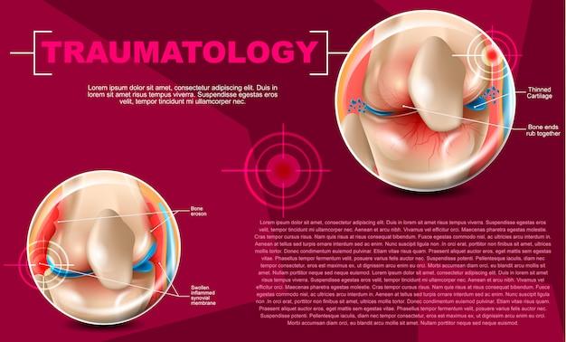Realistic illustration traumatology medicine in 3d Premium Vector
