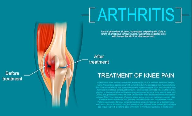 Realistic illustration treatment of knee pain Premium Vector